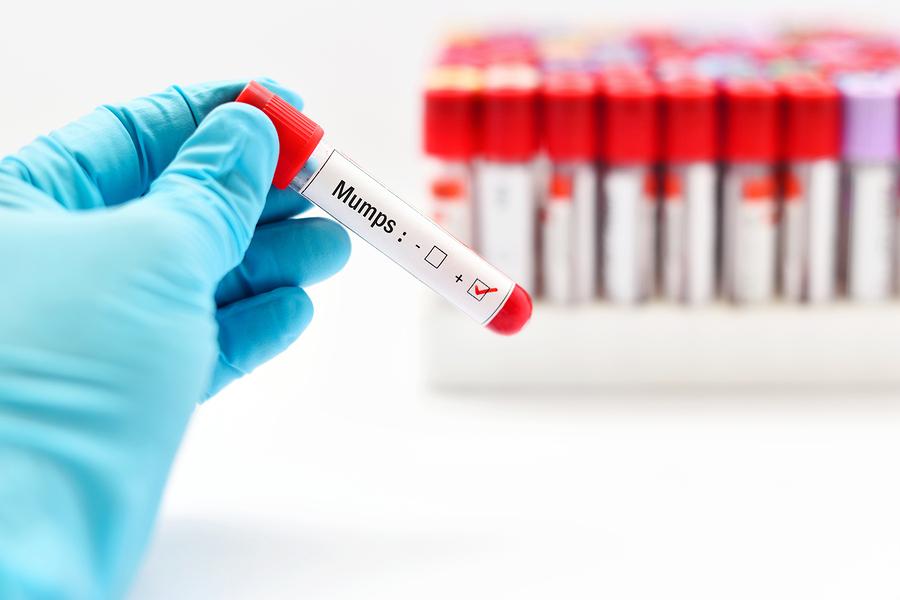 Mumpsvirus - Ziegenpeter Infektion