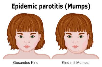 Kinderkrankheit Mumps
