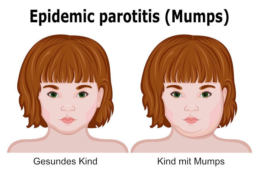 Kinderkrankheit Mumps